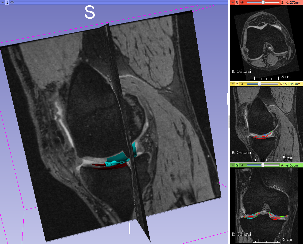 LOGISMOS Image Segmentation | The Iowa Institute for Biomedical Imaging